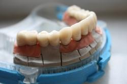 Zirconiu pe implant